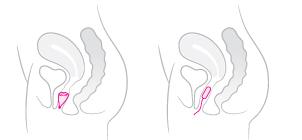 Jusqu'ou positionner une coupe menstruelle